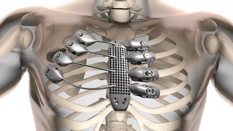 3D odštampana proteza za grudni koš.